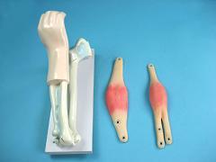 Демонстрационная модель локтевого сустава